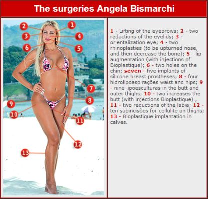 http://www.worldmeets.us/images/Angela-Bismarchi-plastic-surguries_pic.jpg