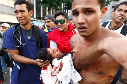 http://worldmeets.us/images/Venezuela-protest-injury-2014_pic.jpg